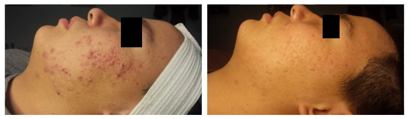 The result of using LED therapy 2 times a week after 8 weeks