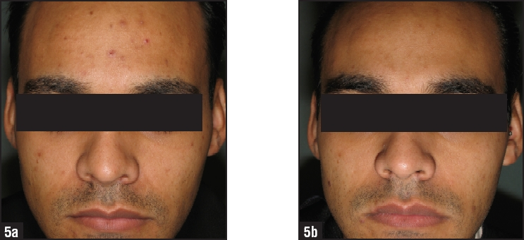 After the eight-week treatment the total number of lesions had reduced by 94%