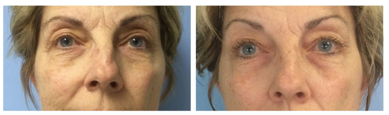 Before-after results of reducing signs of aging (12 weeks of using the device 3 times a week)