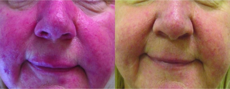 Three months after nine weekly treatment sessions of rosacea