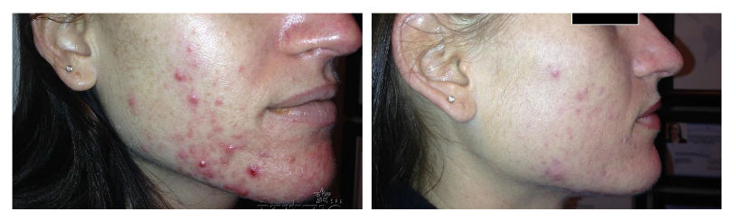 Before-after result of using LED therapy after 8 weeks