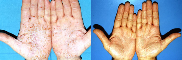 Improvement of the condition of a patient with palmoplantar psoriasis after treatment with PUVA therapy
