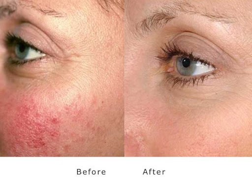 Before/after the result of a patient with rosacea after applying green light therapy treatment