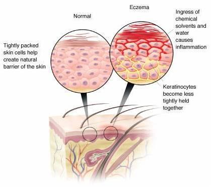 Eczema-affected skin