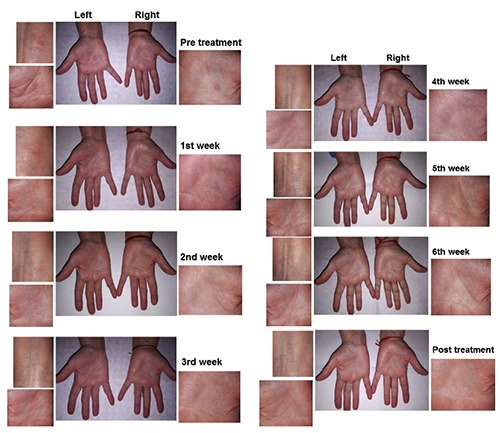Non-atopic dermatitis in the hands: before, during, and after the sixth-week treatment with light therapy