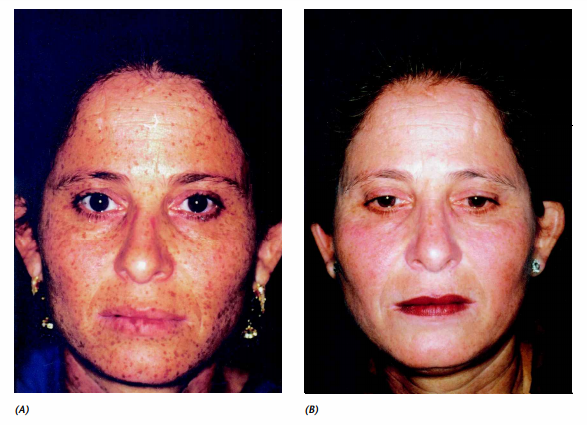 the appearance of lentigines on the face before and after treatment with therapy
