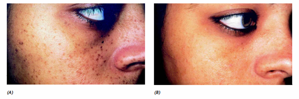 Freckles before and after treatment