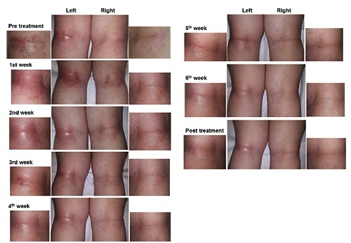 Non-atopic dermatitis in the knee pit: before, during, and after the sixth-week treatment with light therapy