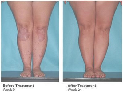 After 24 weeks of treatment for atopic dermatitis with ultraviolet phototherapy