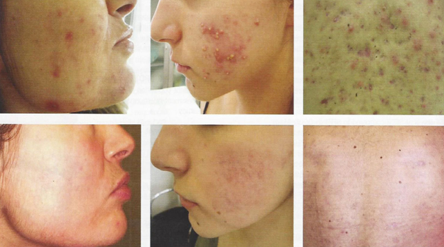 Result acne treatment with combined red and blue LED therapy