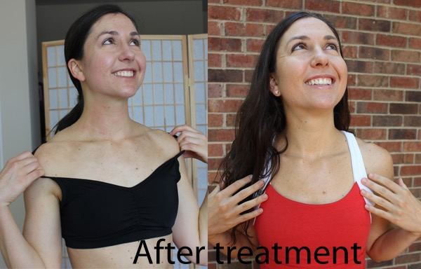 after phototherapy treatment