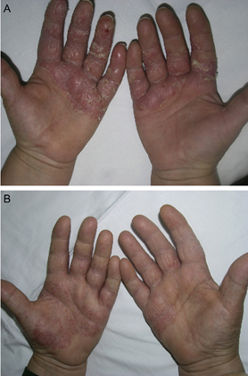 The result of using PUVA therapy for the treatment of palmoplantar psoriasis