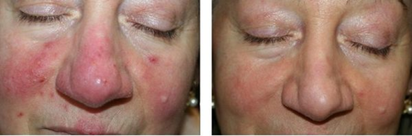 The result of green therapy treatment for signs of rosacea — superficial vascular lesions and erythema