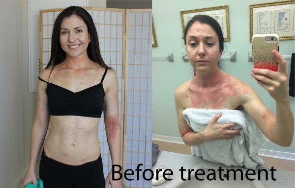 before phototherapy treatment