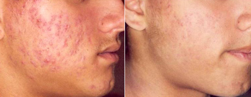 The result of acne treatment with blue light therapy (before/after 4 weeks)