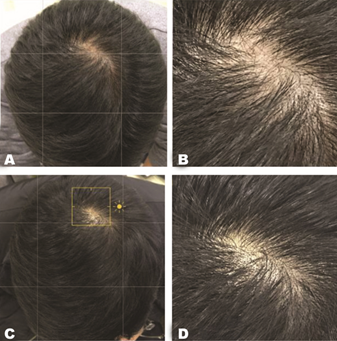 The result of laser hair loss treatment
