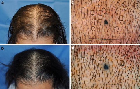 The result of a 26-week baldness treatment with a laser cap
