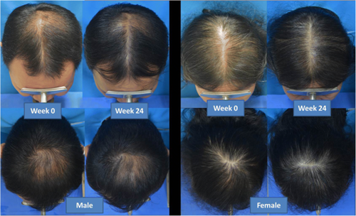 The result of using low-level light therapy for androgenetic alopecia in men and women