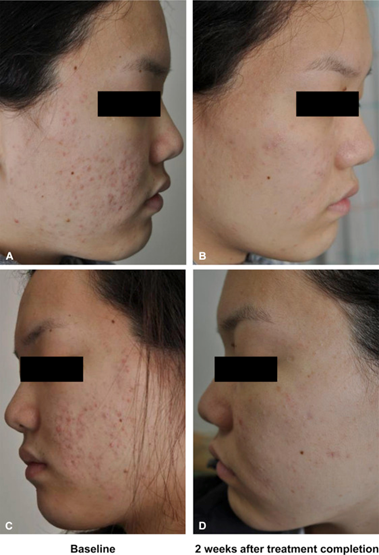 The result of acne treatment with blue light therapy
