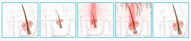 Laser stimulation of hair follicles