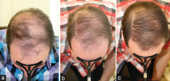HairMax laser comb treatment result