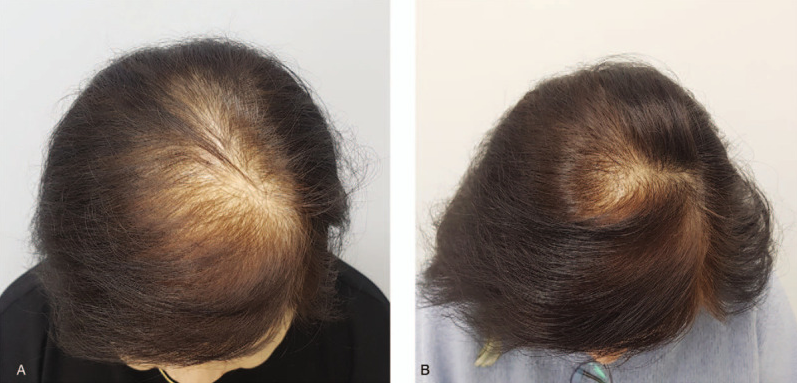 The result of hair loss treatment with LLLT device Source: US National Library of Medicine, National Institutes of Health