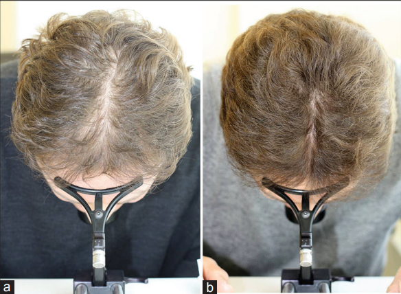 The result of treatment with the HairMax laser comb after 26 weeks Source: hairmax.com