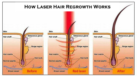 How laser therapy works for hair loss treatment