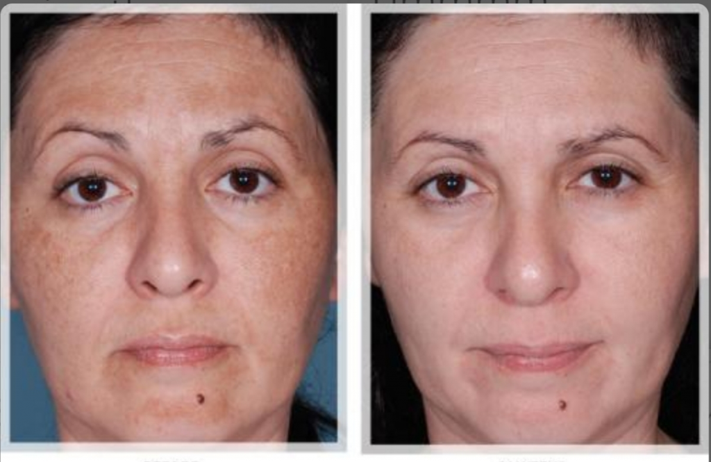 How does light therapy help textured skin?