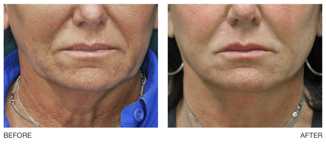 The result of reducing wrinkles and increasing skin elasticity using LLLT