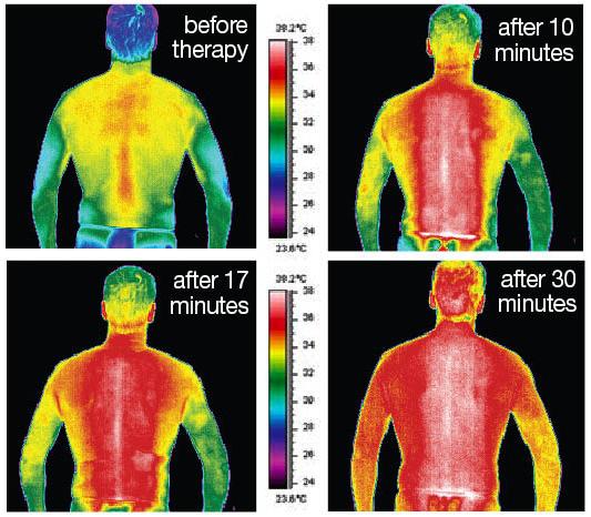 Infrared-heat