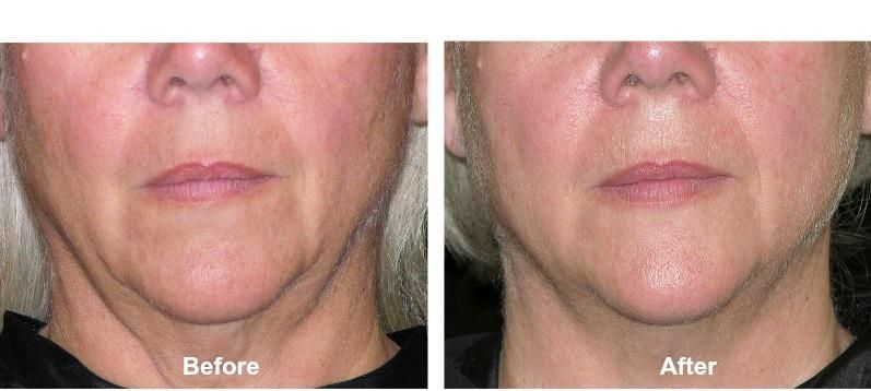 skin tightening with light therapy