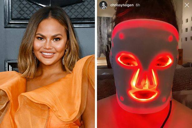 Boost Advanced LED Light Therapy Face Mask (from $495) — Chrissy Teigen