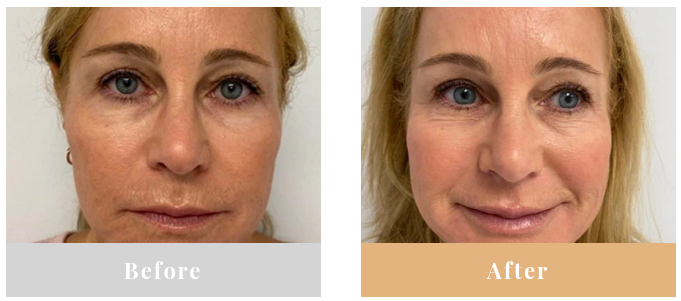 The result of using LED contour light therapy